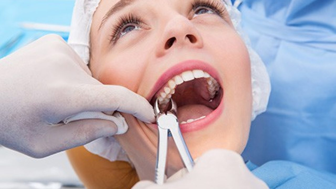 Should You Finally Get That Tooth Pulled