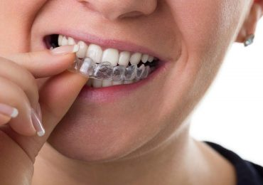 The Process of How Dental Braces Work