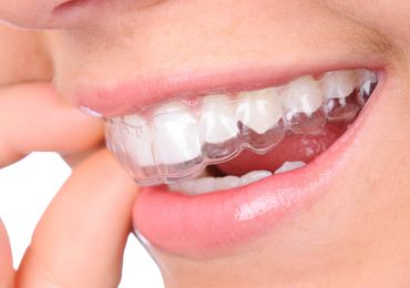 How to get affordable orthodontics treatment procedures