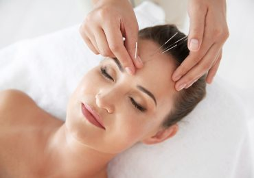 Essential Things You Need to Know About Acupuncture